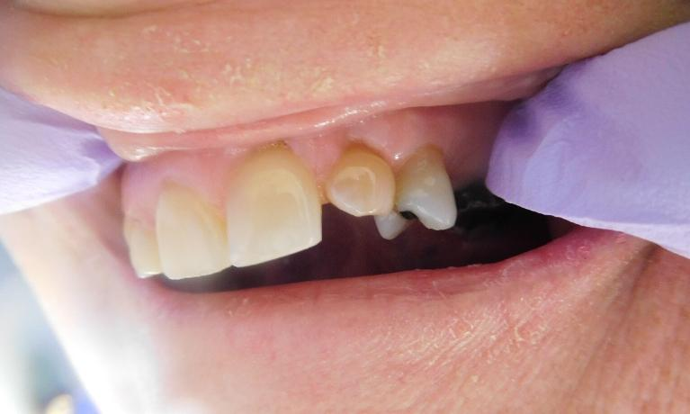 Dental-Bonding-Before-Image